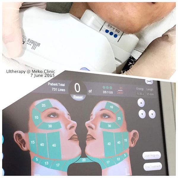 meko-clinic-ulthera-1