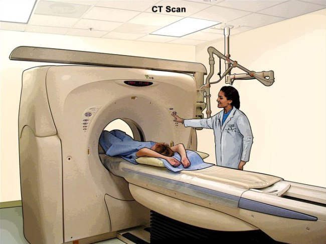 ct-scan-illustration-article